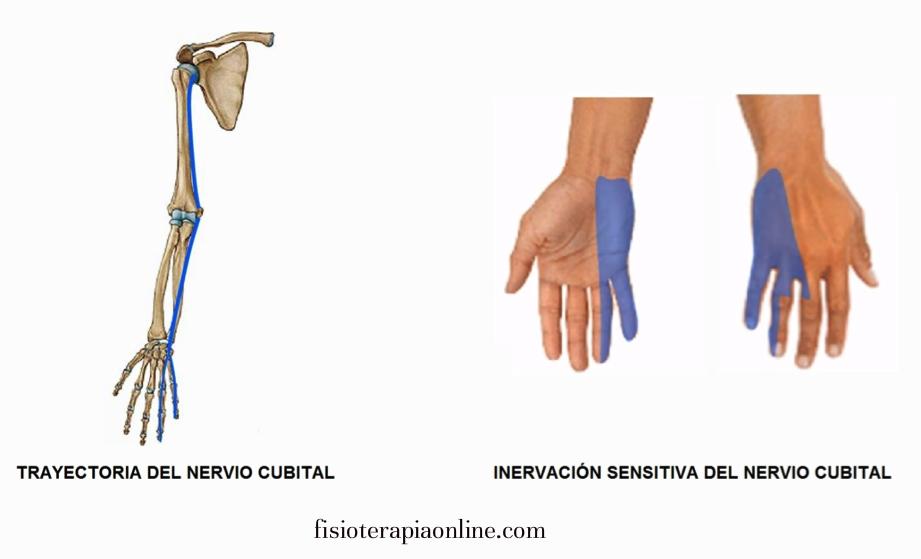 nervio-cubital